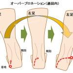 靴のかかとの外側がすり減る人は外反母趾になりやすい理由と治し方