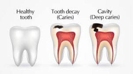 How to cure Dental Caries