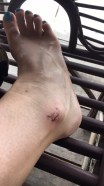 My ankle looking a little worse for wear.