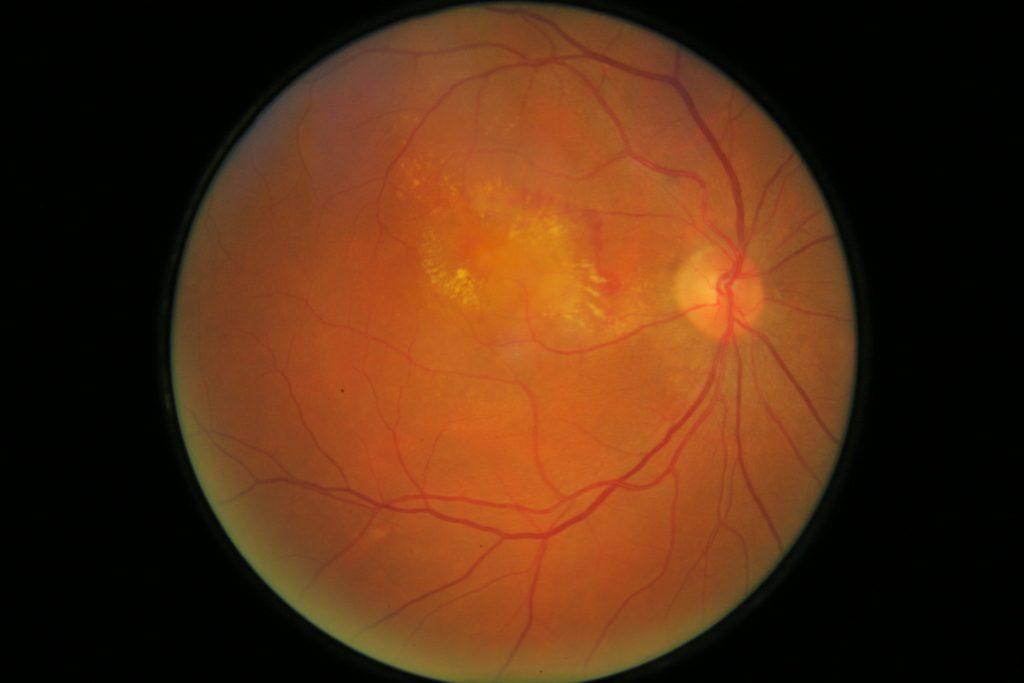 central serous maculopathy , Κεντρικη ορωδης αμφιβληστροειδοπαθεια