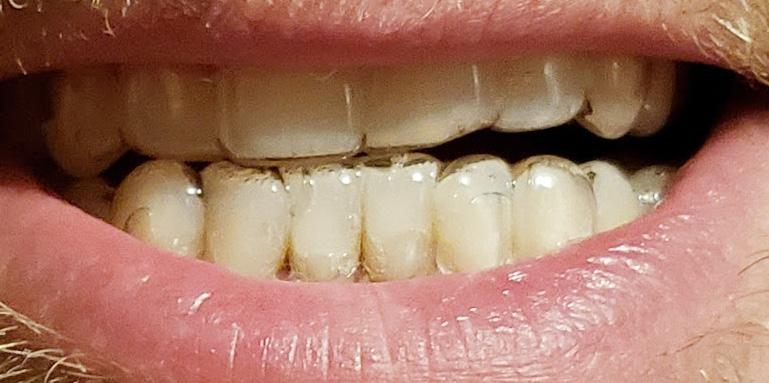 Teeth whitening trays wearing them