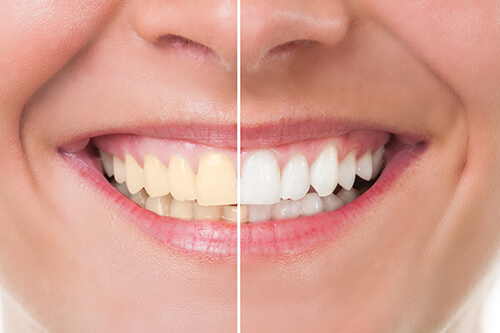 5 Proven Methods To Deal With Yellow Teeth