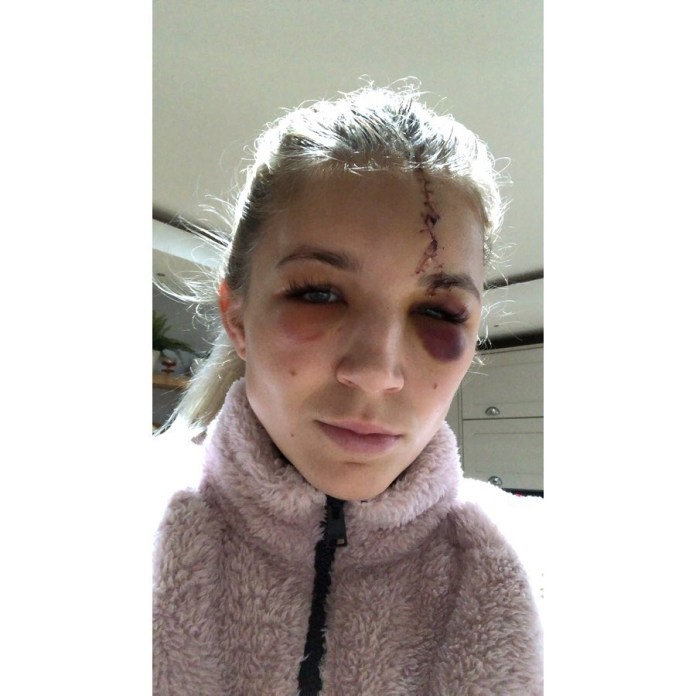 Kitching called it the worst injury of her career as a goalkeeper