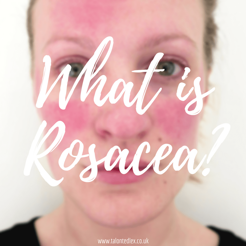 What is rosacea? Skincare and how to manage the condition...