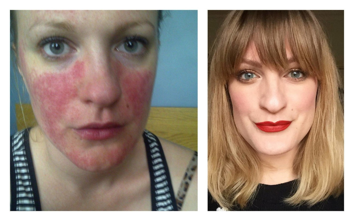 'Men prefer women who wear make up'...My thoughts on make up, why I wear it, and why I don't care if you approve. #talontedlex #skinpositivity #rosacea #makeup