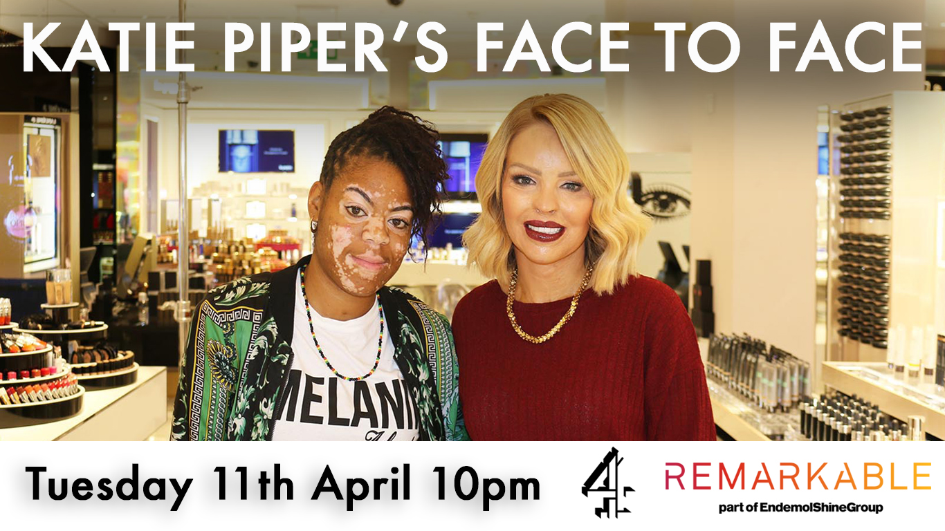 I'm going to be on TV! Katie Piper's Face To Face