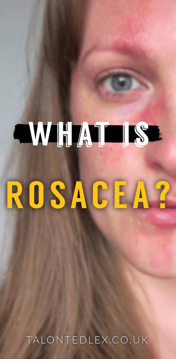 Rosacea FAQ: everything you've ever wanted to know but were afraid to ask. Skincare tips, advice, product recommendations, diet, make up, and everything in between. #talontedlex #rosacea