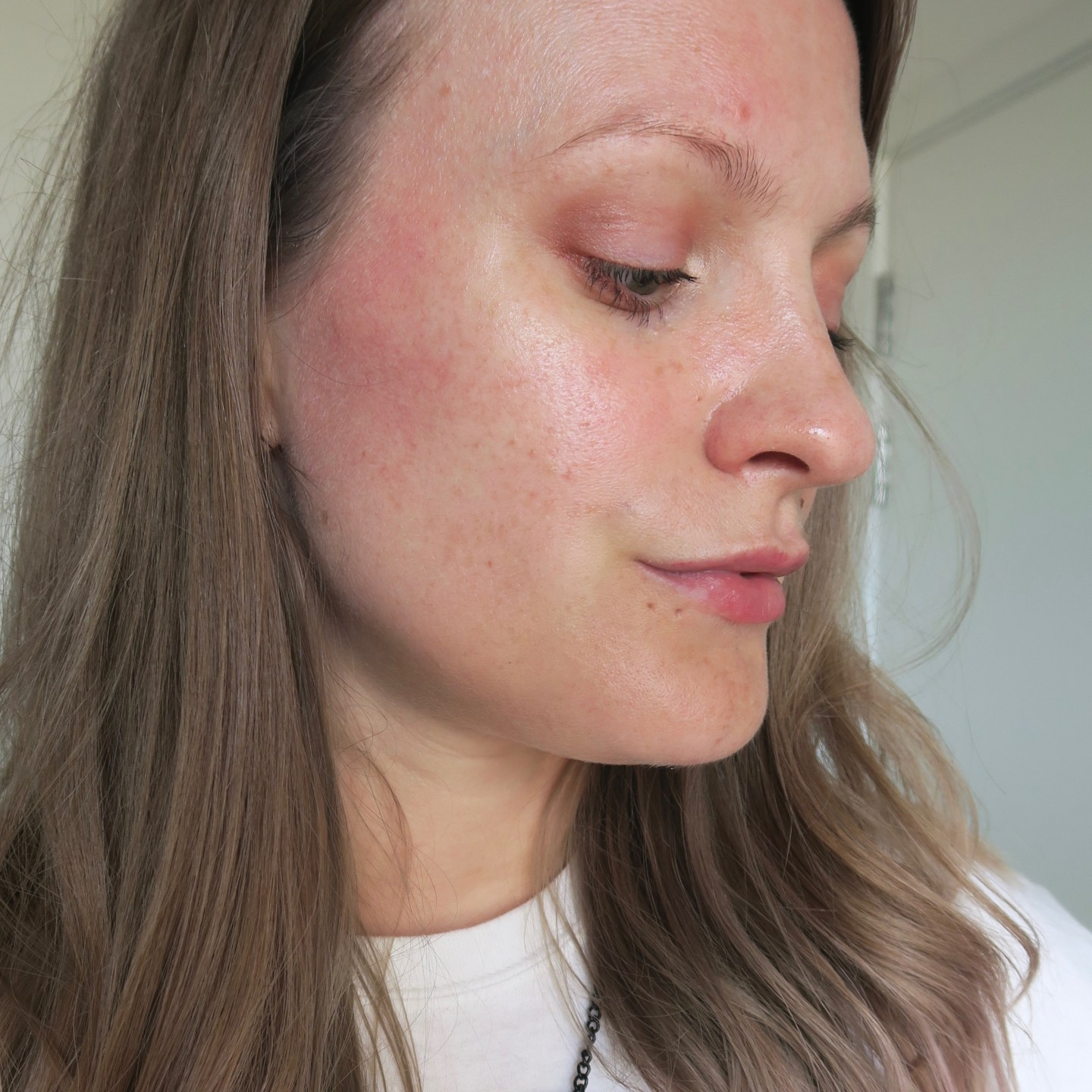 Rosacea: Skin Aspirations Enzyme Therapy Facial