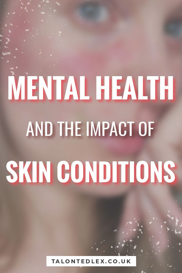 Mental health and the impact of skin conditions. The psychological side of skin conditions is commonly overlooked but it's often intertwined. I'm sharing my thoughts on the support needed for those suffering with skin conditions. #talontedlex #skincondition #rosacea #mentalhealth
