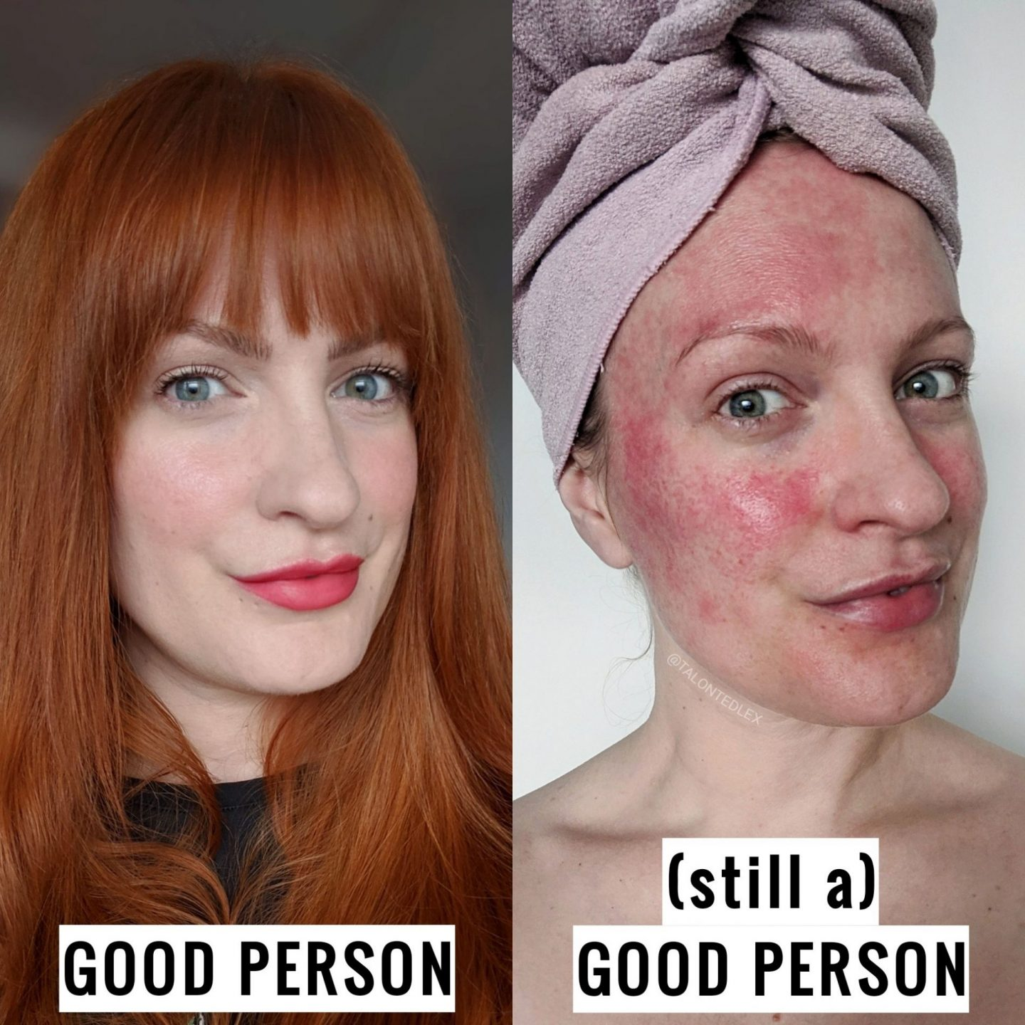 Why good skin doesn't make you a good person (and vice versa!) Skin positivity, body positivity, and why we need to be a little bit kinder. Skincare blogger and rosacea activity, Talonted Lex shares her thoughts on the bizarre belief that good deeds are rewarded with good skin. #talontedlex #goodskin #skinpositive #skinblogger #rosaceaadvice