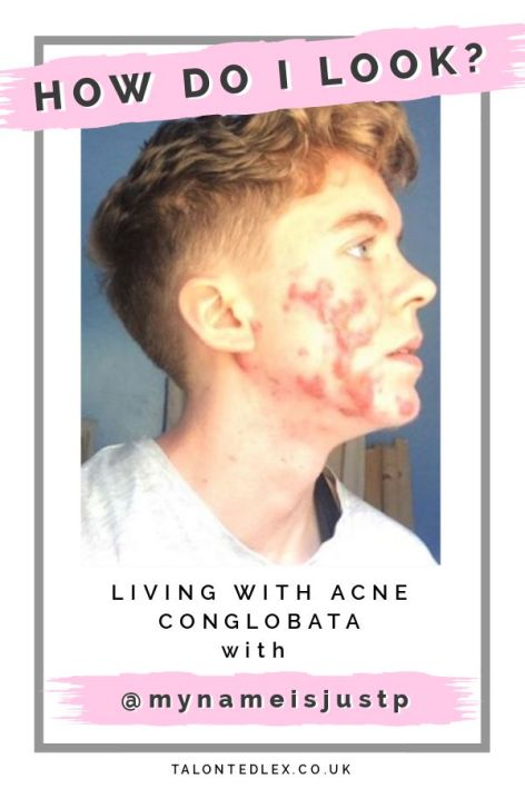 Read my interview with P (@mynameisjustp), acne and skin positivity hero. They talk about mental health, hormones, assumptions, and dealing with acne scars. #talontedlex #skinpositivity #acnepositivity