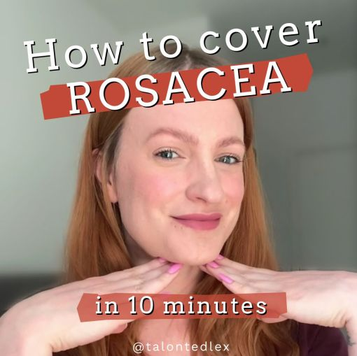 #AD Showing you the products I use to get an everyday make up look that covers my rosacea quickly and without looking heavy. Make up tips for rosacea. Make up tutorial for rosacea and sensitive skin. Featuring some of my favourite products, including NYX foundation, Glossier make up, and Sephora lipstick. #talontedlex #makeupadvice #rosaceacover #naturalmakeup #subtlemakeup