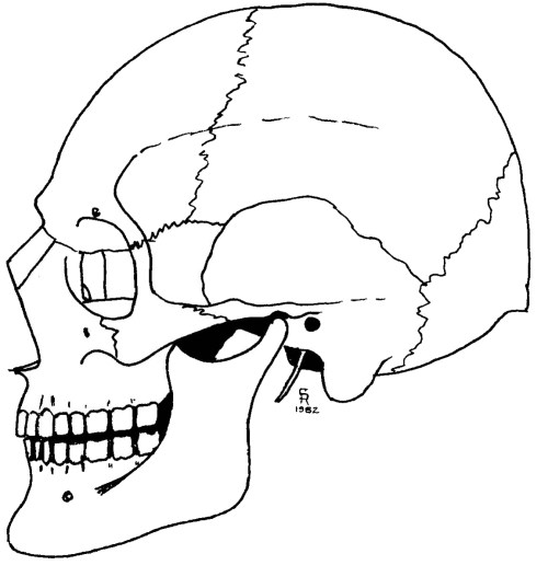 small resolution of lateral of skull blank diagram
