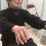 シェーグレン症候群の関節痛に対するエネルギー治療の著効例