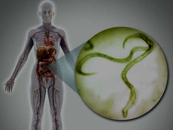 Best Natural Remedies For Treating Giardiasis