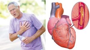 Cara mencegah Penyakit Umum pada Pria Tua
