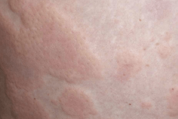 A 56-year-old woman with 20 years of chronic hives (urticaria) and 18 years of eczema 荨麻疹并发湿疹