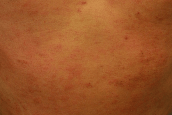 A 29-year-old man with 17 years of prurigo papules and eczematous skin lesions 湿疹