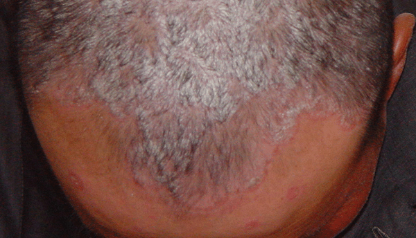 A 43-year-old man with diffused silvery scales adherent entire scalp and salmon-pink papules on forehead and face. scalp psoriasis 头皮银屑