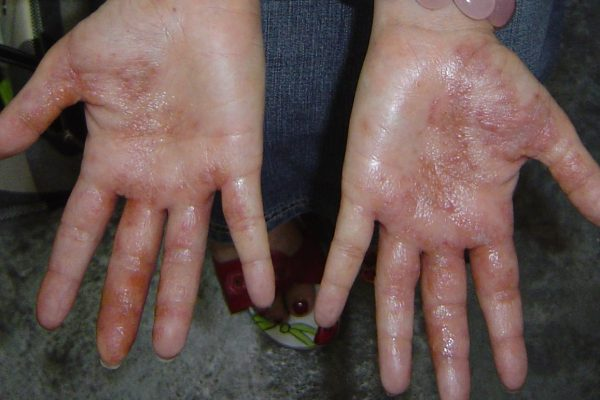 Eczema Testimony from Michelle, Singapore