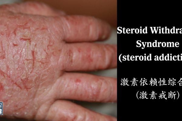 A Systematic Review of Corticosteroid Withdrawal Syndrome 激素戒断综合征