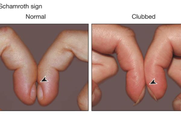 Nail Signs Clubbing 杵状指