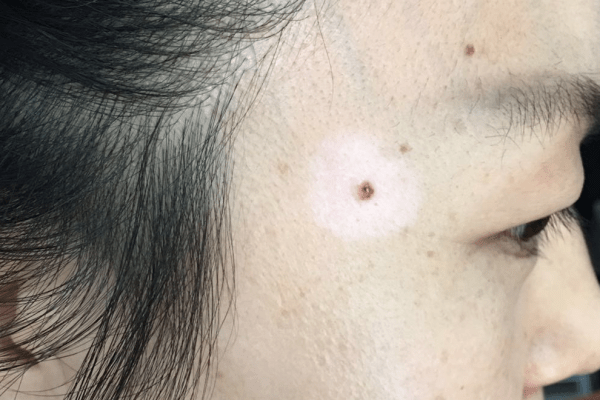 Halo nevus also known as Leukoderma acquisitum centrifugum, Sutton's nevus, Perinevoid vitiligo 晕痣