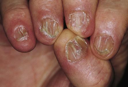 Nail Signs lichen planus 扁平苔藓指甲
