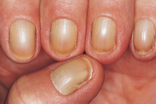 Nail Signs Yellow Nail Syndrome