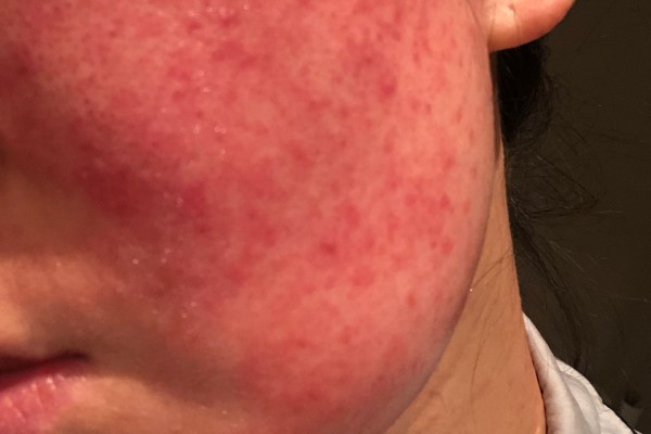 Cosmetics Induced Dermatitis due to Facial Mask 甘草酸苷美白面膜导致的皮炎
