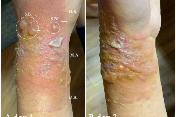 Second degree burn healed in 10 days with herbal formulated HLQ ointment