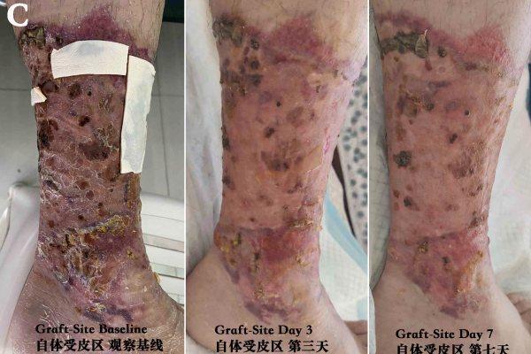 Postoperative Skin Autograft Wound Care 烧伤植皮术后伤口治疗