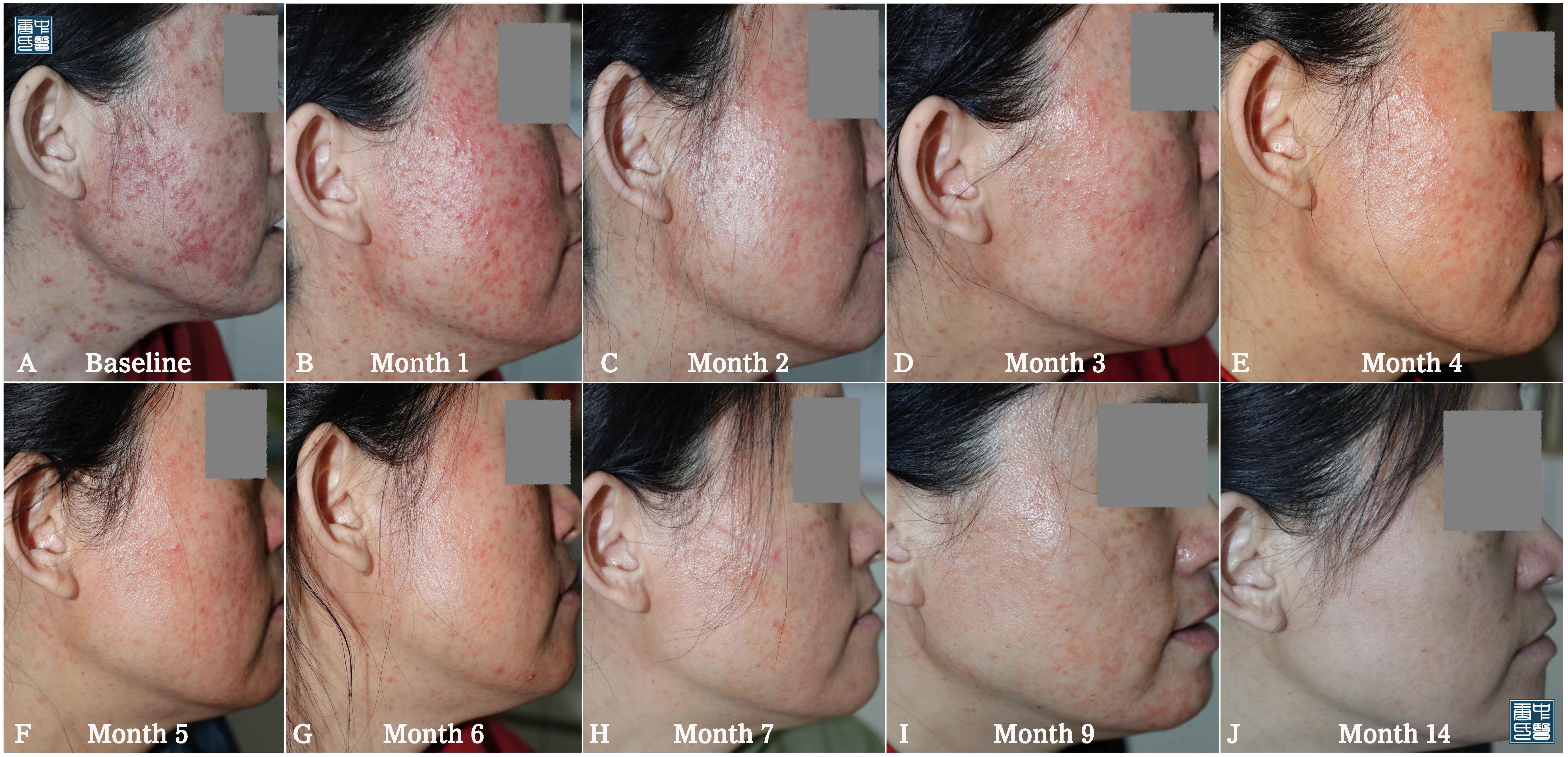 retinoid dermatitis A3