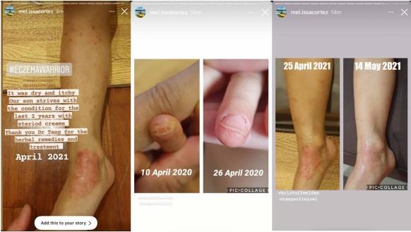 tesimonial eczema 5