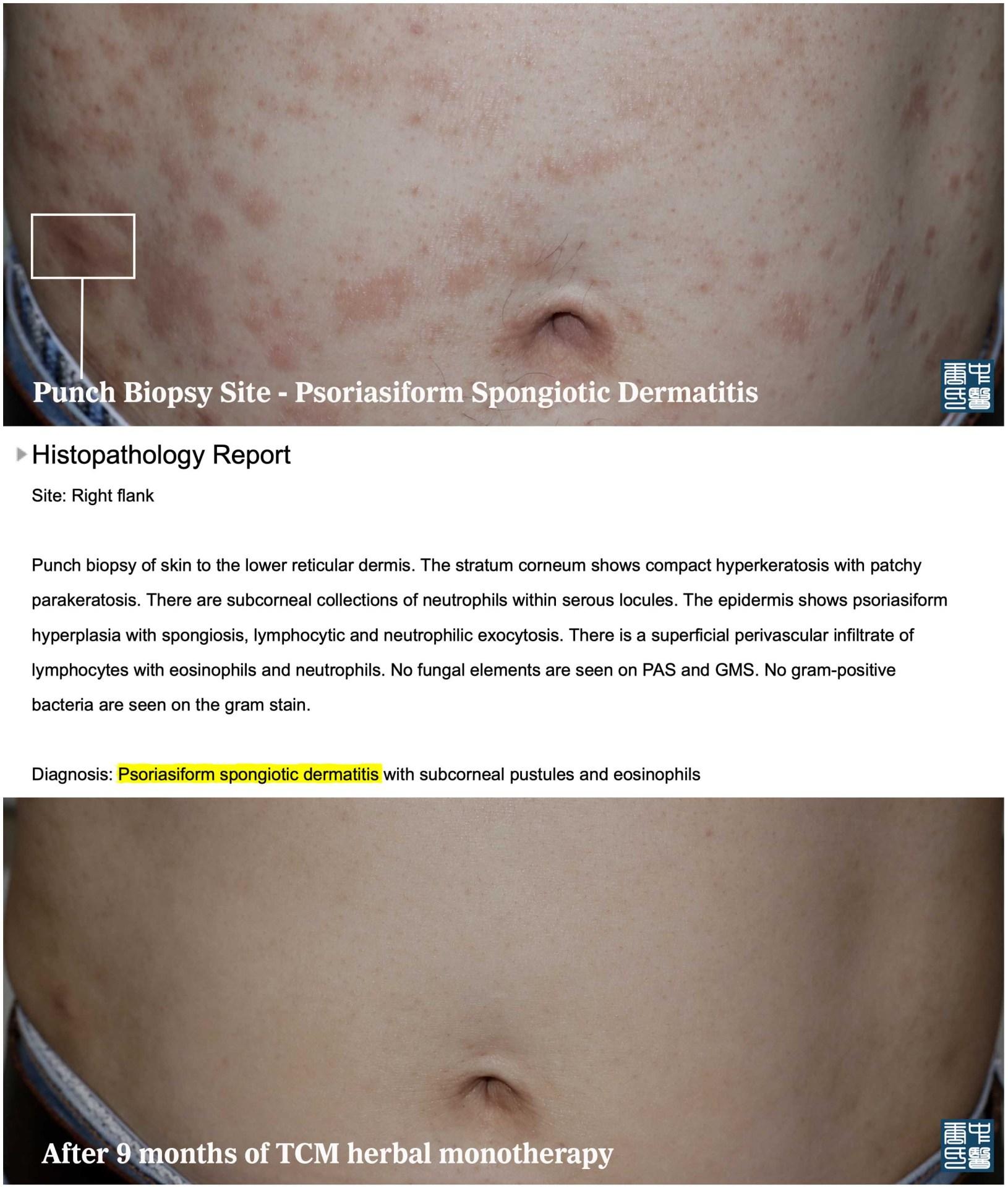 Psoriasiform Spongiotic Dermatitis Histology 4