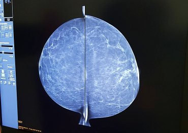 My breast image from the top