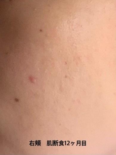 肌断食1年目の右頬の画像