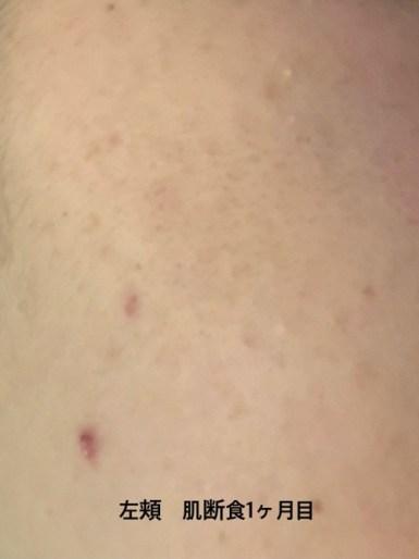 肌断食1ヶ月目の左頬の画像