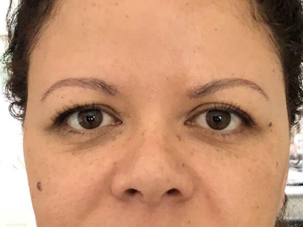 Mijn oogleden voor de ooglidcorrectie