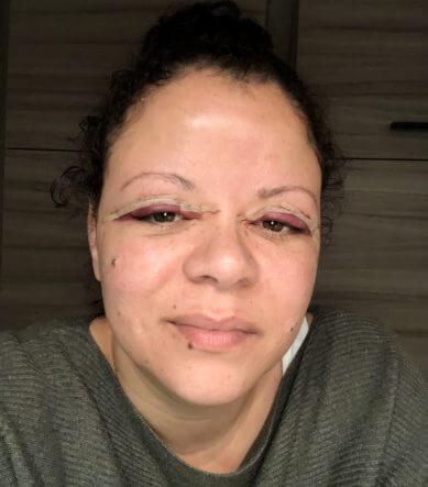 Mijn ogen een uur na de ooglidcorrectie