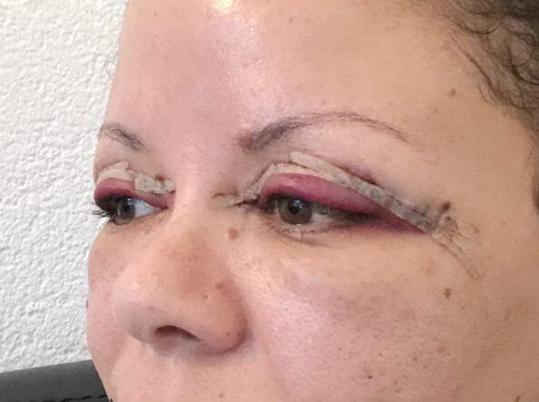 De zwelling van mijn oogleden een dag na de ooglidcorrectie