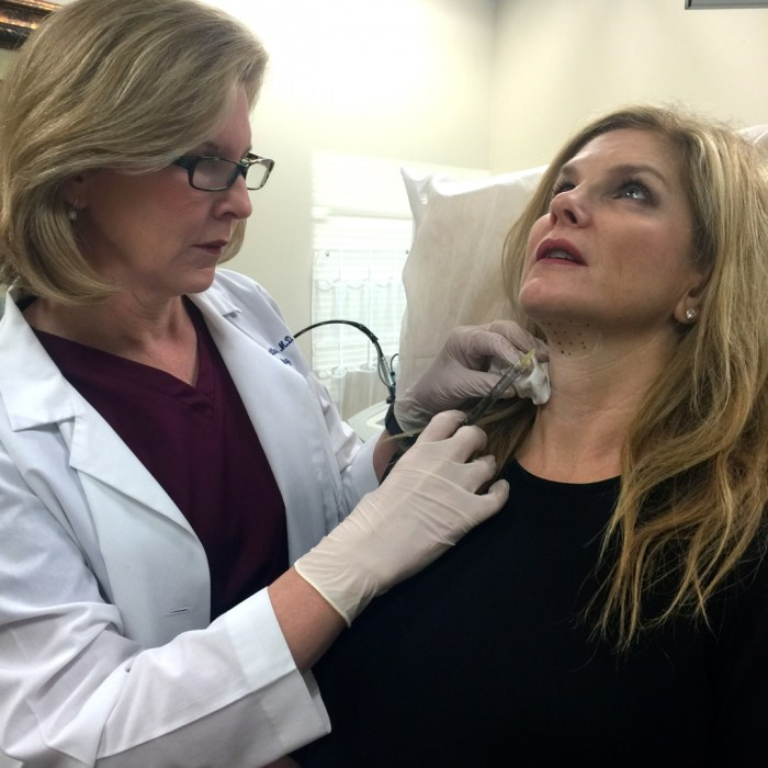 Kybella, Dallas Center for Dermatology and Aesthetics, Tanya Foster, Lori Stetler