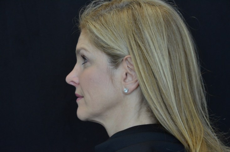 Kybella, after treatment, Dr. Lori Stetler, Dallas Center for Dermatology and Aesthetics, results