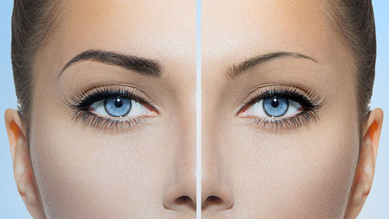 microblading and coolscultpting