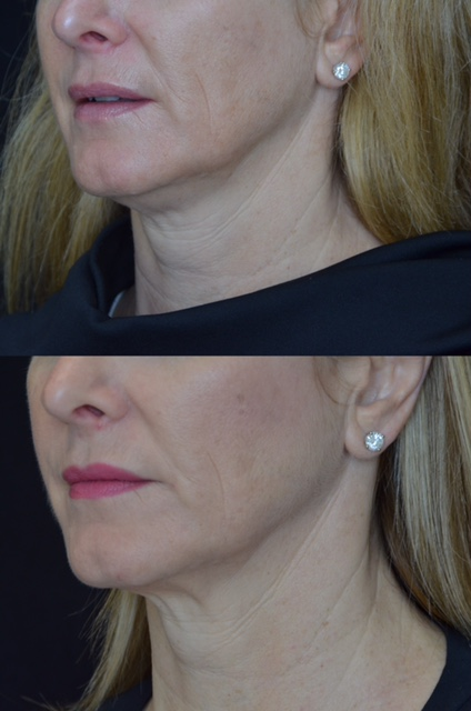 The final pictures from my Kybella and Thermage treatments. Tanya Foster at 6 months post treatment.
