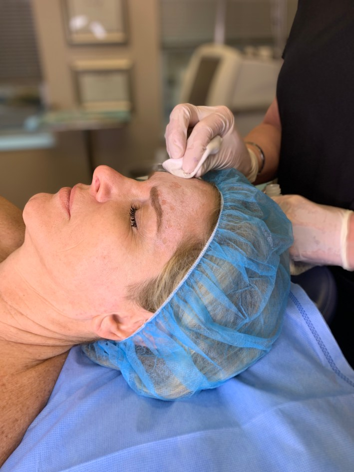 Face Application - TCA Peel with Dr. Lori Stetler