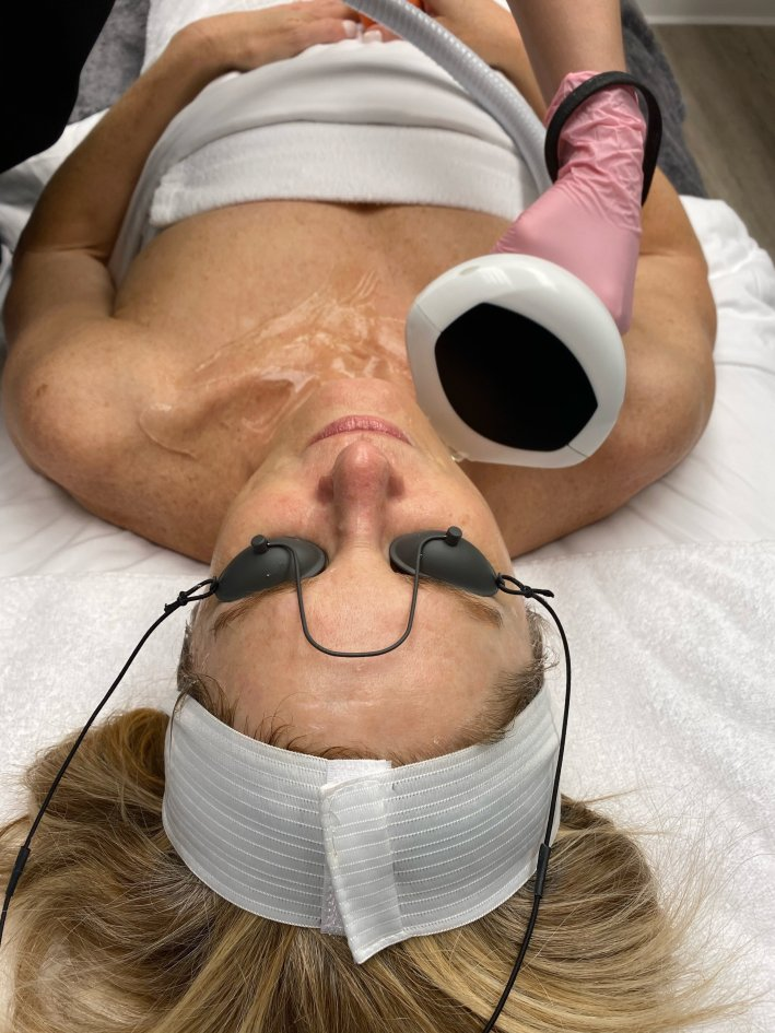 IPL Photofacial at Eleven Wellness