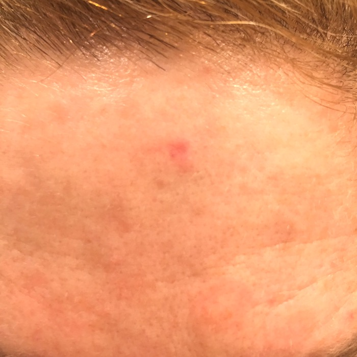 The reality of skin cancer on TanyaFoster.com