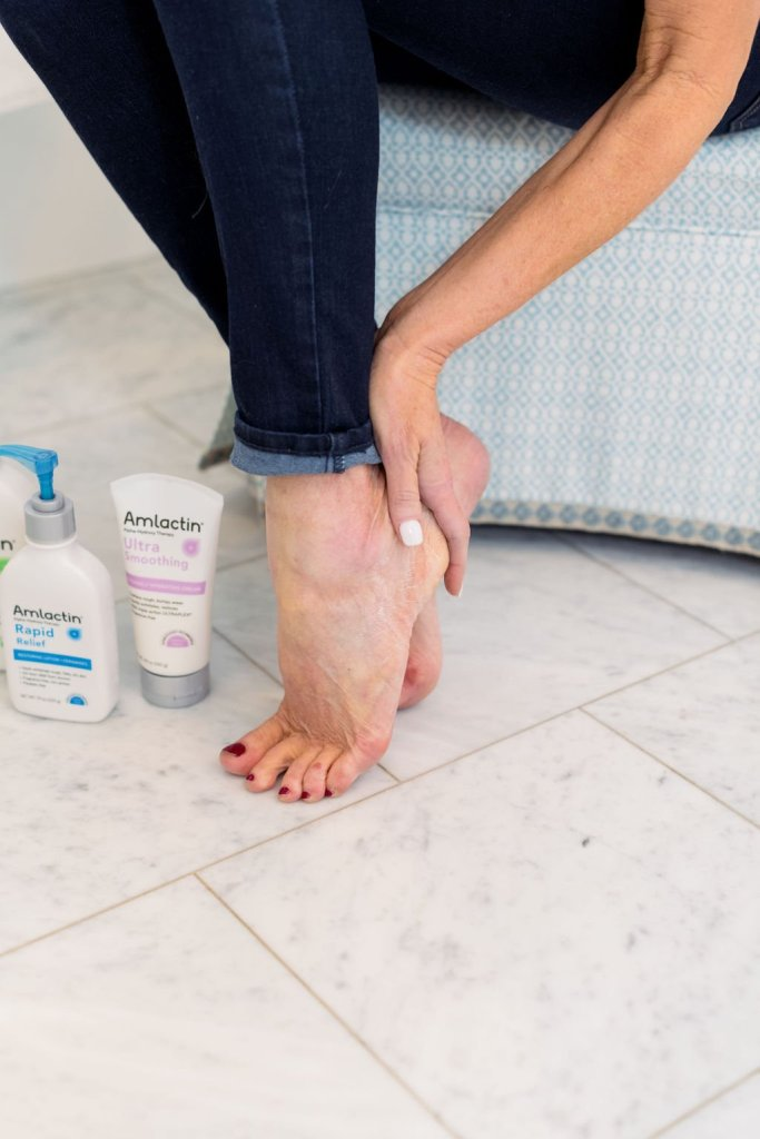 Tanya Foster holding her heel using AmLactin lotion