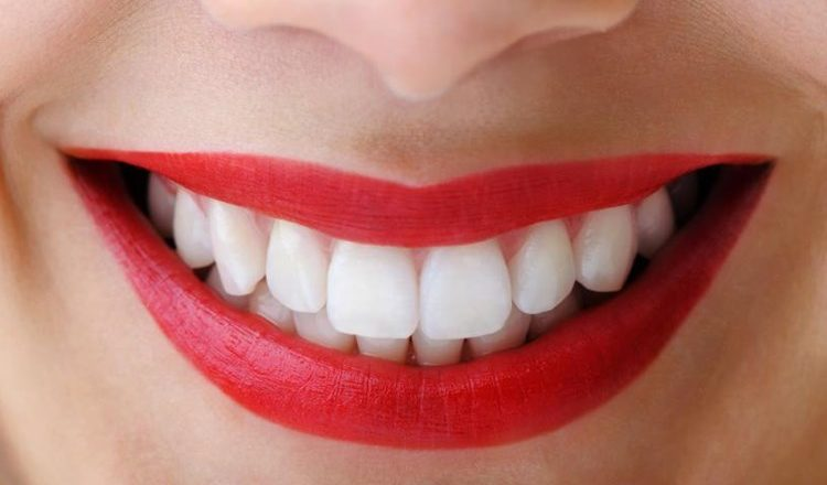 WEDDING: In Office Teeth Whitening with Preston Commons Dental Care